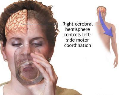 Cerebrum Function Test