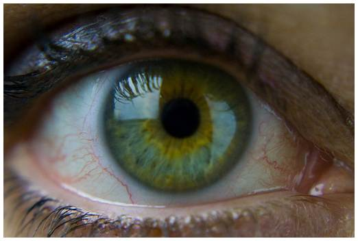 Central Heterochromia – Causes, Types and Statistics ...