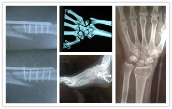A Bone May Break Into Numerous Pieces Due To Various Causes, Which Are The  Following: