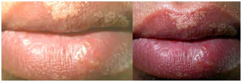 Are fordyce spots from sex