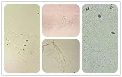 bacterie in urine man