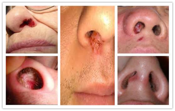 Sores In Nose Pictures Causes And Treatment Actforlibraries Org